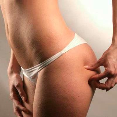 OlisticMap - Massaggio Anticellulite